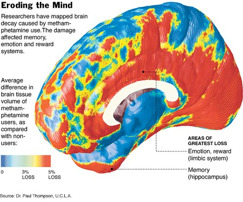 what drug addiction does to the brain